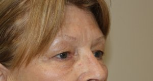 upper eyelid surgery before picture right oblique view
