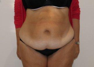 Brazilian tummy tuck before AP view