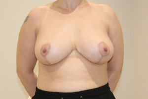 Breast reduction after AP view