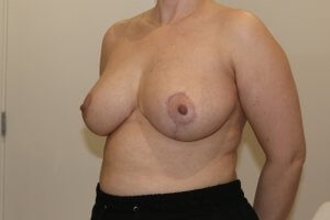 Breast reduction after left oblique view
