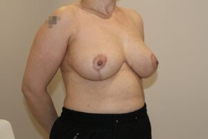 Breast reduction after right oblique view