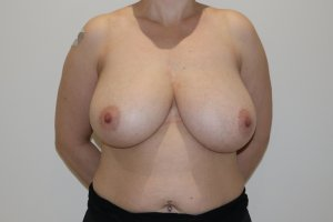 Breast reduction before AP view