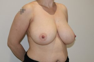 Breast reduction before right oblique view