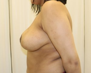 Breast reduction after left lateral view