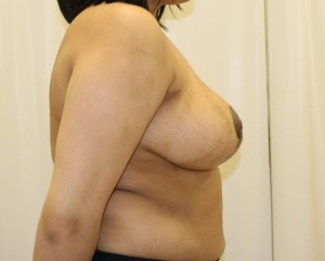 Breast reduction after right lateral view