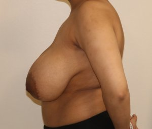 Breast reduction before left lateral view