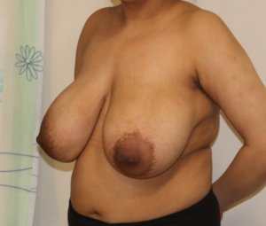 Breast reduction before left oblique view