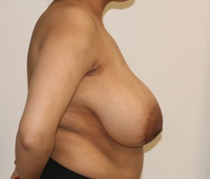 Breast reduction before right lateral view