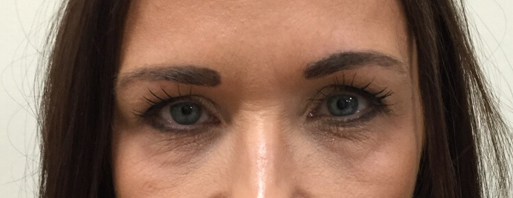 Lower eyelid surgery before AP view