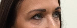 Lower eyelid surgery before right oblique view