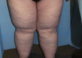 Lower limb lipoedema liposuction before ap view