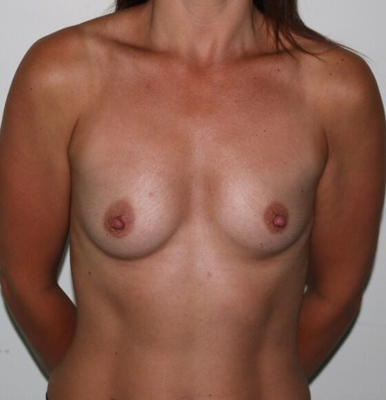Image of breast enlargement before surgery AP view