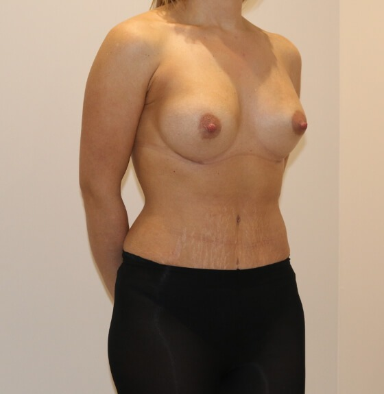 Image of mummy makeover after surgery right oblique view