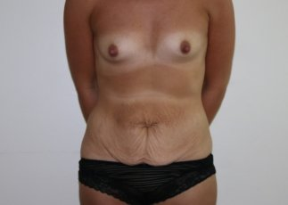 Image of mummy makeover - breast enlargement and tummy tuck before surgery AP view at The Karri Clinic
