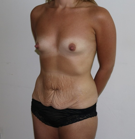 Image of mummy makeover - breast enlargement and tummy tuck before surgery left oblique view