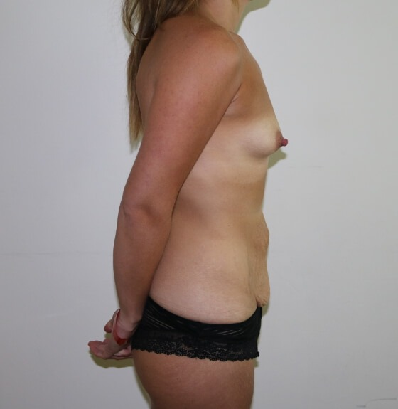 Image of mummy makeover - breast enlargement and tummy tuck before surgery right lateral view