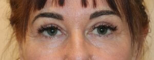 Image of upper blepharoplasty after surgery AP view