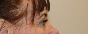 Image of upper blepharoplasty after surgery right lateral view