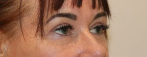 Image of upper blepharoplasty after surgery right oblique view