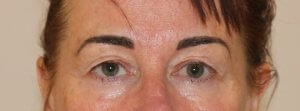 Image of upper blepharoplasty before surgery AP view