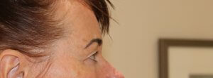 Image of upper blepharoplasty before surgery right lateral view
