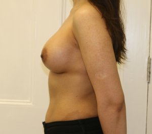 Breast enlargement after left lateral view