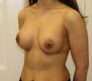 Breast enlargement after left oblique view