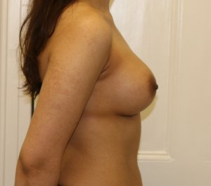 Breast enlargement after right lateral view