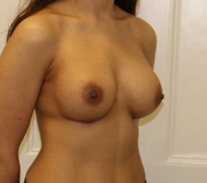 Breast enlargement after right oblique view