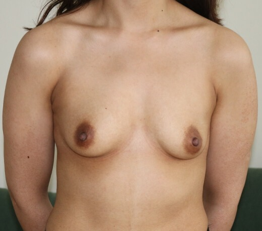 Breast enlargement before picture AP view