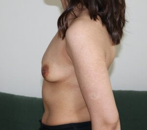 Breast enlargement before picture left lateral view