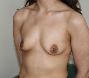Breast enlargement before picture left oblique view