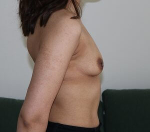 Breast enlargement before picture right lateral view