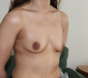 Breast enlargement before picture right oblique view