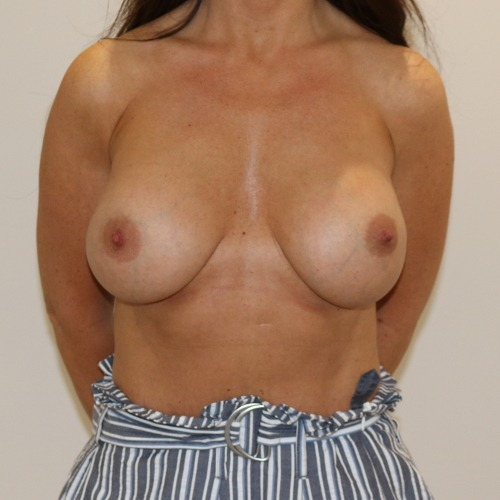 Breast enlargement after surgery AP view The Karri Clinic