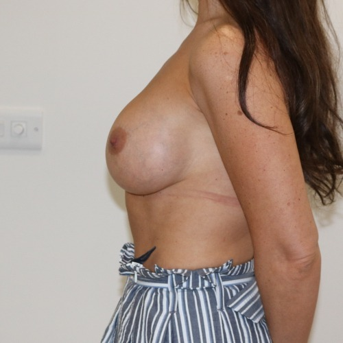 Breast enlargement after surgery left lateral view The Karri Clinic