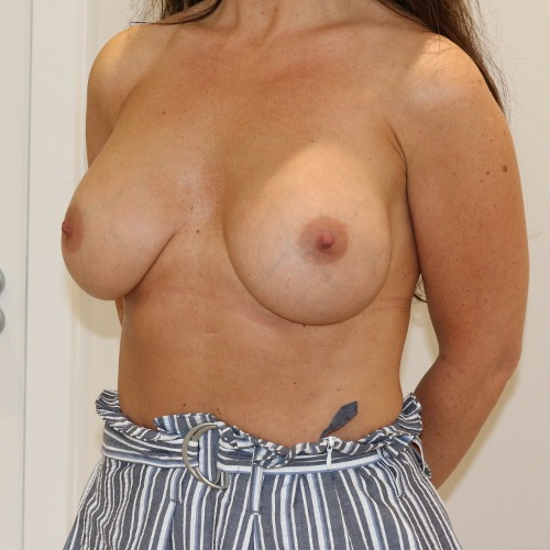 Breast enlargement after surgery left oblique view The Karri Clinic