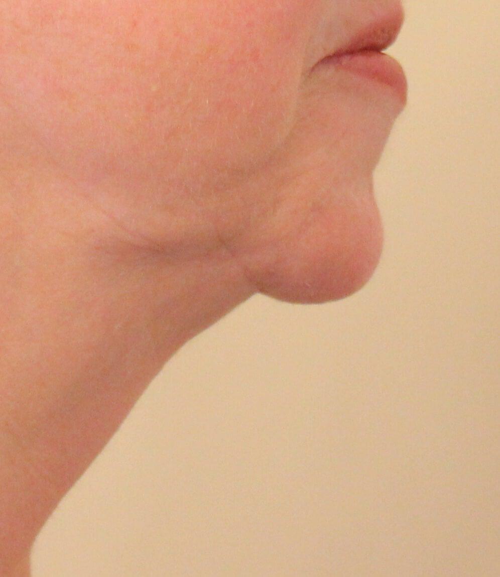 Witch's chin deformity