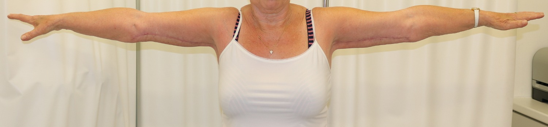 Brachioplasty (arm lift) after anterior view