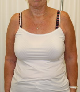 Brachioplasty (arm lift) appearance of the scars with the arms down by the sides anterior view