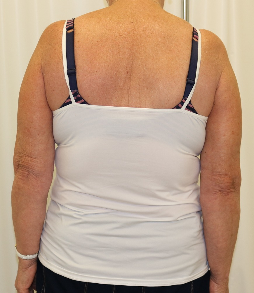 Brachioplasty (arm lift) appearance of the scars with the arms down by the sides posterior view