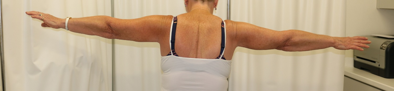 Brachioplasty (arm lift) after posterior view