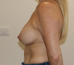 Breast capsular contracture (implant exchange) surgery