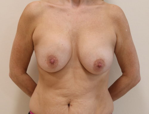 Capsular Contracture Surgery