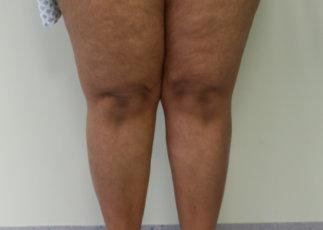 Lipoedema (Type II) liposuction