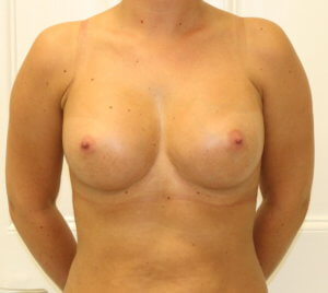 Breast enlargement at The Karri Clinic after photo