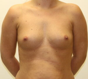Breast enlargement at The Karri Clinic before photo