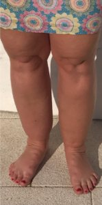 Lipoedema before and after