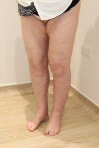 Lower limb lipoedema liposuction after