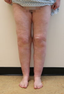 Lower limb lipoedema liposuction before